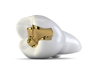 should you opt for a gold filling? gregorin dental anchorage alaska dentist