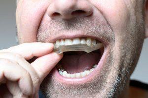 unusual sports that need a mouthguard gregorin dental anchorage alaska dentist