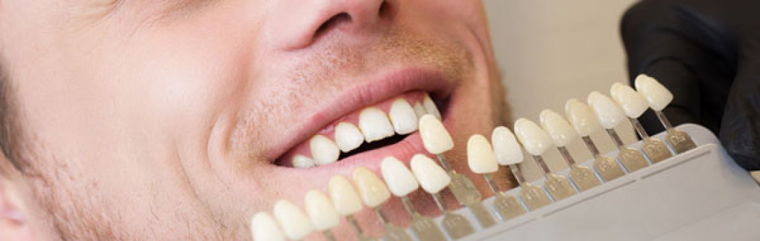 How Cosmetic Dentistry can Enhance your Life