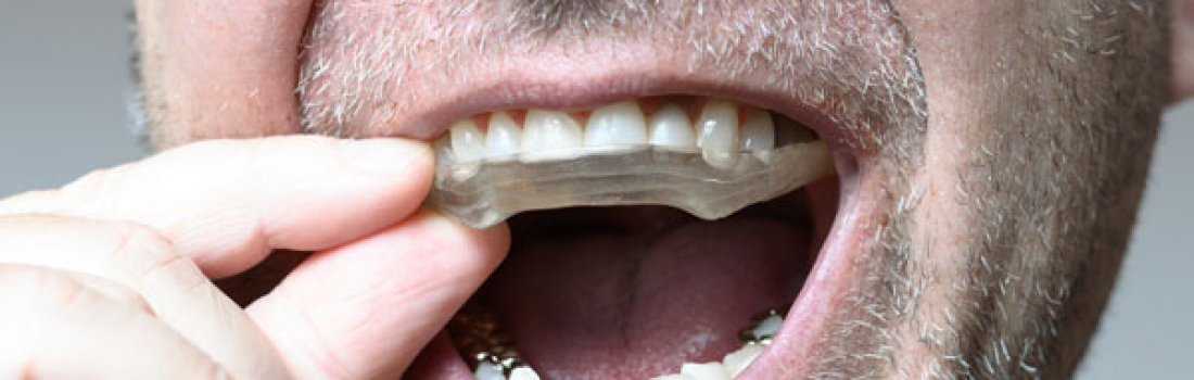 Unusual Sports That You Should Be Wearing a Mouthguard For