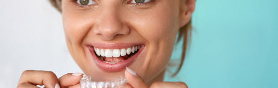 How At Home Whitening Kits Stack Up Against Treatments at Your Dentist's Office